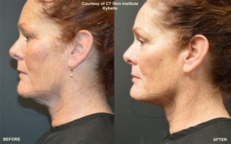 laser stretch mark removal dermatology picture 17