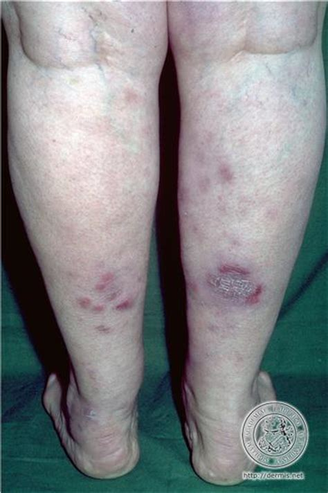 acne graves disease picture 10