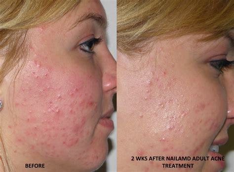 Acne cure picture 3