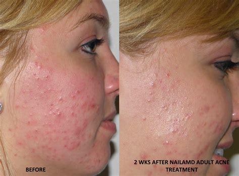 acne medicine picture 3