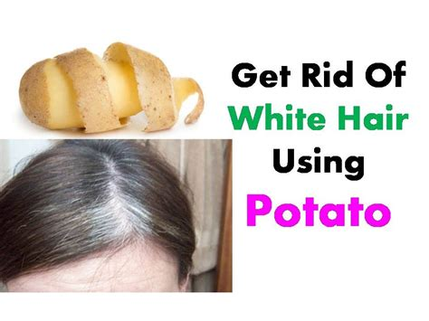 white hair removal picture 10