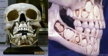 losing teeth growing teeth picture 11