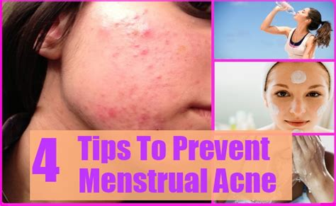 acne during period picture 2