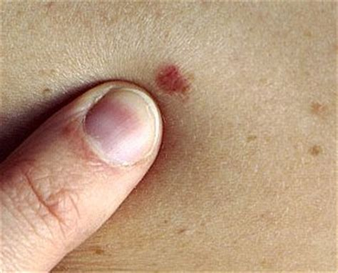 skin cancer spots picture 3
