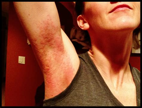 hives from bounce dryer sheets picture 1