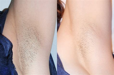 california laser hair removal picture 18