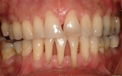 picture of h cavities picture 6