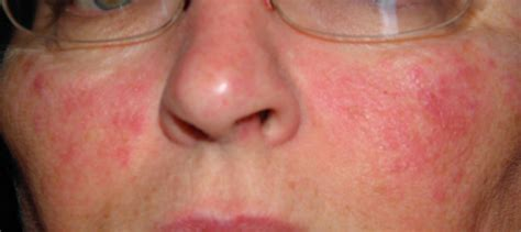 face skin rash picture 2