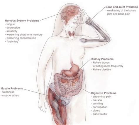 what are the symptoms of a swollen parathyroid picture 2