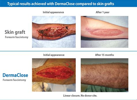 care for skin graph sites picture 3