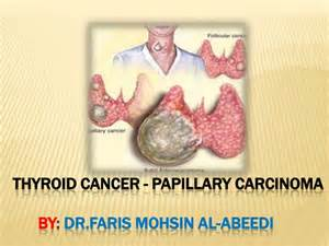 icd-9 papillary thyroid cancer picture 5