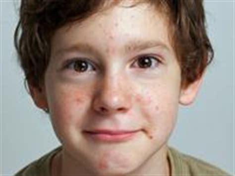 Acne and children picture 1