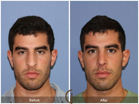 cost of male nose enhancement in the philippines picture 11