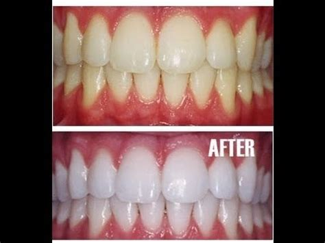 can you whiten teeth naturally picture 15