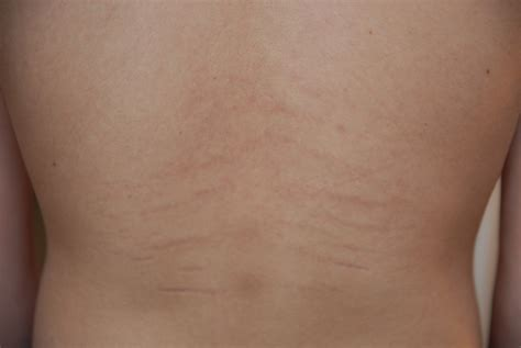 stretch marks on underarm area in adolescent male picture 17
