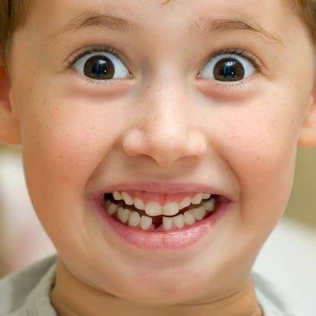 children's health losing teeth picture 10