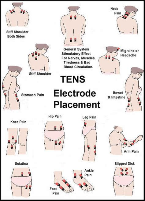can a tens unit help get an erection picture 7