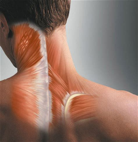 muscle spasms neck picture 3