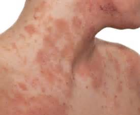 eczema skin -weight -loss picture 1