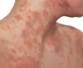 does eczema darken skin picture 17