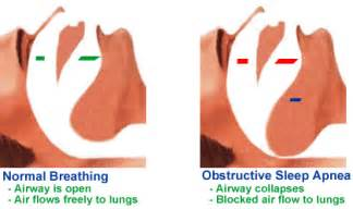 obstructive sleep apnea not snoring picture 10