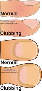 pediatric bowel problems picture 10