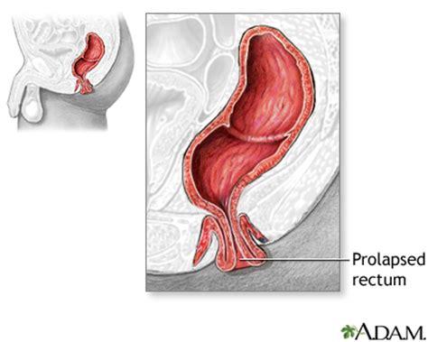 prolapsed colon picture 10