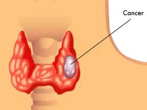 thyroid cancer treatments picture 2