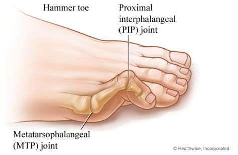 finger joint replacements picture 9