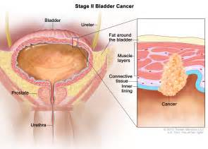 bladder cancer metastised picture 3