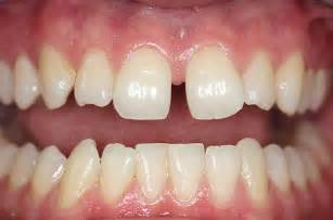 gap in the front teeth picture 6