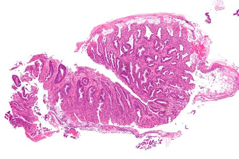 ischemic colon picture 7