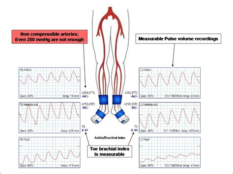 Blood pressure charts picture 10