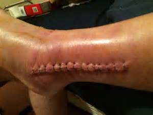 dry skin on ankle picture 6