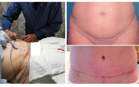weight loss after tummy tuck picture 13