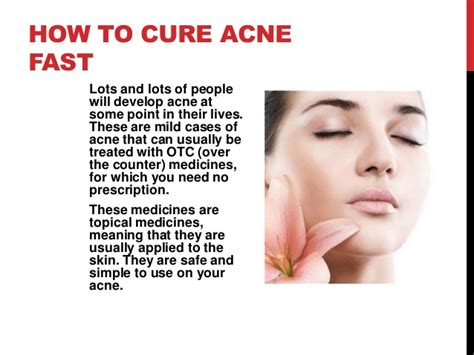 how to treat acne picture 1