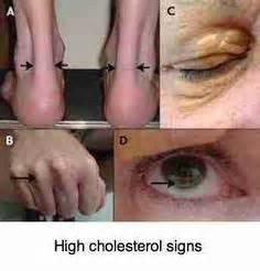high cholesterol symptom picture 3