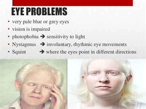 albinos commonly contract skin cancer. what seems to picture 13