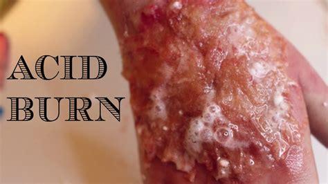 acid skin burn picture 2