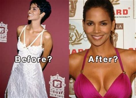 +without surgery breast enhancement before and after pictures picture 13