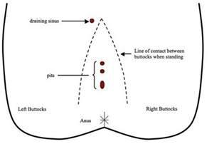carbuncle treatment picture 5