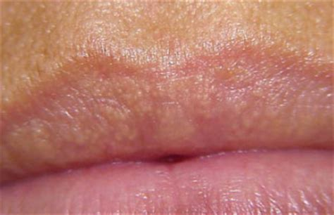 fordyce spots on lips burning picture 2