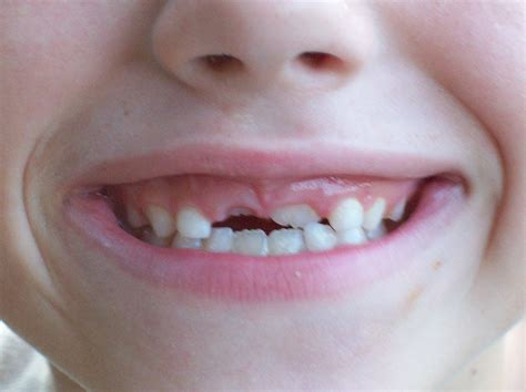 child's health loose teeth picture 6