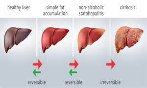 foods to heal fatty liver picture 11