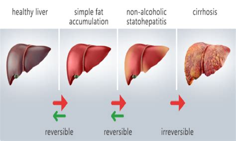 fatty tumor on liver picture 2