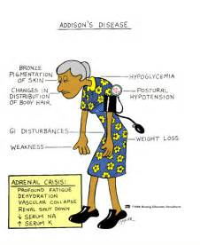 addisons disease, intestinal problems picture 10