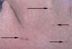 genital wart symptoms picture 9