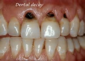 decayed and sensitive teeth picture 5