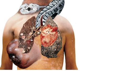 what damage second hand smoke can cause picture 8
