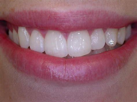 diamond teeth picture 11
